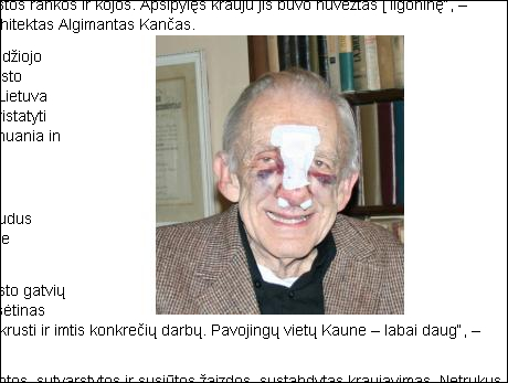 20120423-kaunas-profesoriui-atsidekojo-trauma-02.jpg